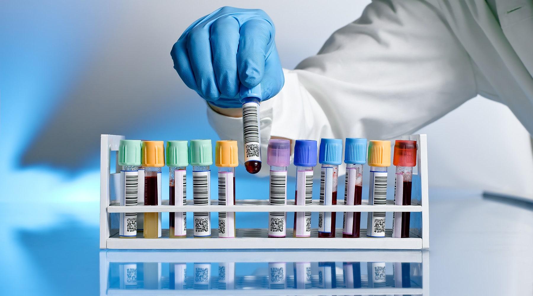 Wareline e Data Innovations: parceria melhora no fluxo de laboratório